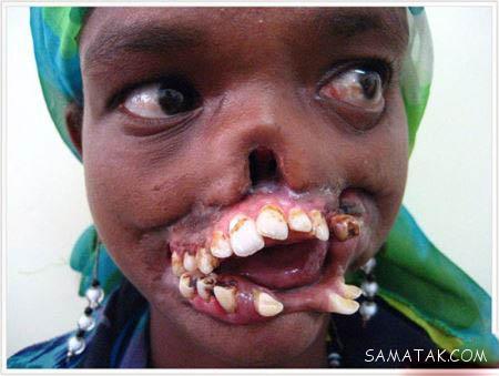 مرض نوما بیماری وحشتناک صورت (تصاویر + 18)