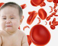 برای کم خونی کودکان چه چیزی مفید است