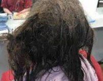 کثیف ترین موی جهان روی سر دختر 16 ساله + تصاویر