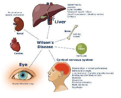 بیماری ویلسون در کودکان