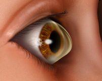 راههای درمان قوز قرنیه چشم