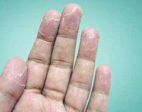 پوست پوست شدن انگشتان دست، کف پا و صورت