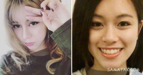 دختر زیبایی که 30 عمل جراحی زیبایی کرده است