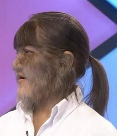 ترسناک ترین دختر جهان با صورت پر مو شبیه گوریل + تصاویر