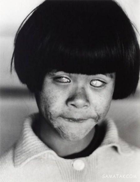ترسناک ترین دختر جهان شبیه زامبی (تصاویر 16+)