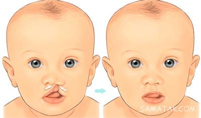 علت لب شکری بودن نوزاد چیست