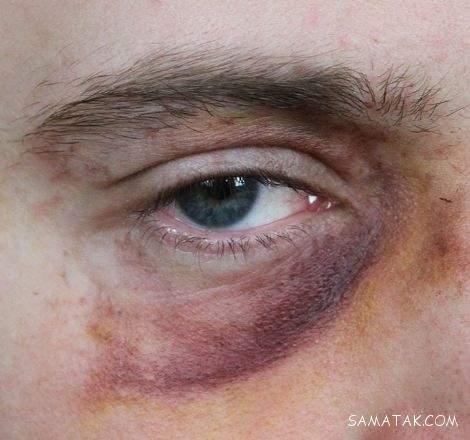 از بین بردن کبودی زیر چشم بر اثر ضربه