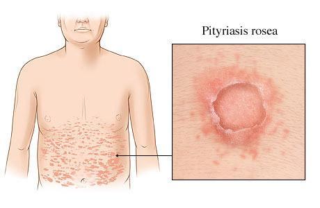 پیتریازیس | علل، علائم و راههای درمان دائمی بیماری پیتریازیس