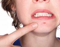 درمان سریع جوش صورت و آکنه با روش سلبریتی ها