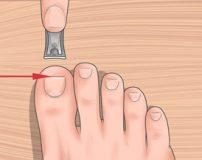 تکنیک های درمان خانگی فرورفتگی ناخن در گوشت پا