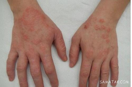 درمان اگزما دست چیست | بهترین روشهای درمان اگزما دست