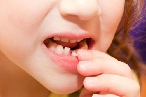 علت زود افتادن دندان شیری   علت دیر افتادن دندان شیری