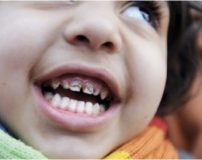 علت زود افتادن دندان شیری | علت دیر افتادن دندان شیری