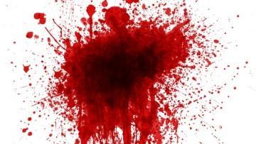 تعبیر خواب خون دماغ شدن دیگران – زن – بچه – مرده – شدید
