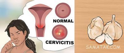 رفع عفونت واژن با سیر | رفع عفونت قارچی واژن با سیر