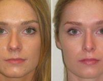 راه های کوچک شدن بینی گوشتی بدون عمل جراحی