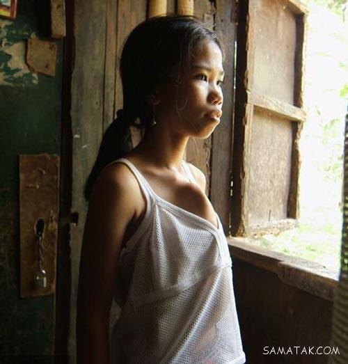 سینه های دختر 14 ساله به شکل عجیب + تصاویر