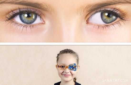 تنبلی چشم در کودکان زیر پنج سال