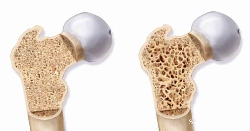استخوان درد شدید نشانه چیست | علت استخوان درد شدید