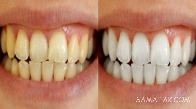 طرز سفيد كردن دندان های زرد با زردچوبه | سفید شدن دندان با زردچوبه