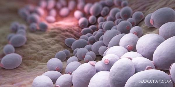 علت عفونت مخمری واژن   درمان خانگی عفونت مخمری واژن