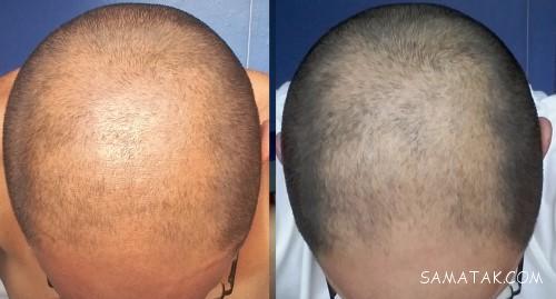 قرص فیناگرو برای ریزش مو   عوارض قرص فیناگرو چیست