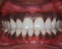 سیاه شدن لثه دندان روکش شده | درمان خانگی سیاه شدن لثه