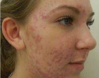 علت جوش های قبل از پریودی | درمان جوش صورت قبل از پریود