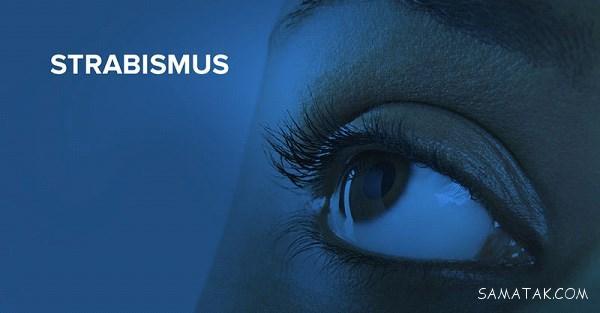 انحراف چشم با چه روش هایی درمان می شوند ؟