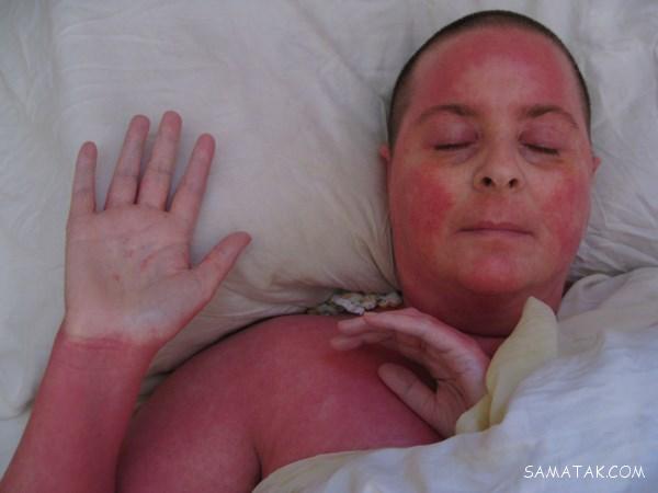 چگونه قرمزی پوست صورت را از بین ببریم