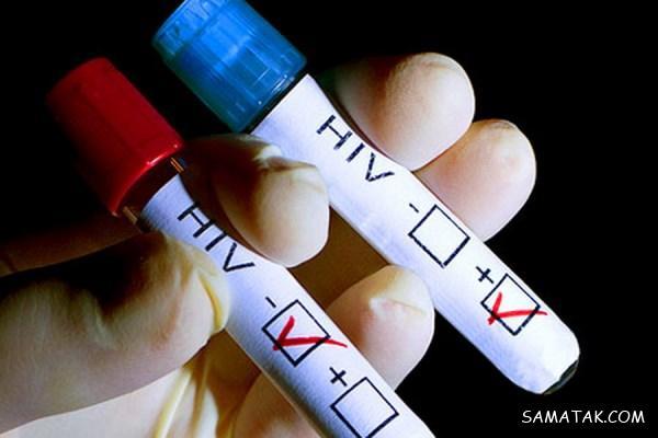احتمال ایدز در پاره شدن کاندوم | اگر کاندوم پاره شود ایدز میگیریم