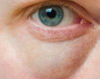 درمان قطعی برای رهایی از گودی زیر چشم | بهترین راه برای رفع گودی زیر چشم