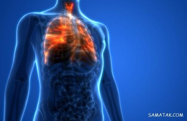 آب آوردن ریه نشانه چیست | علل، علائم و درمان قطعی آب آوردن ریه