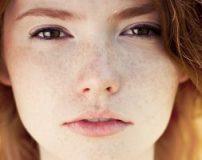 کرم ضد کک و مک قوی | بهترین کرم برای درمان کک و مک صورت