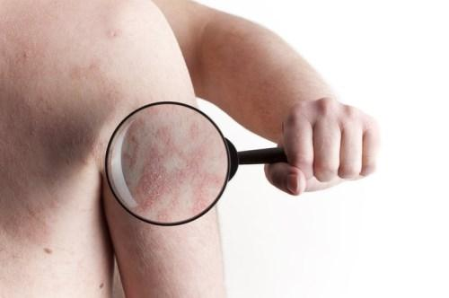 علت زخم شدن آلت تناسلی مردان   درمان زخم پوست آلت مرد