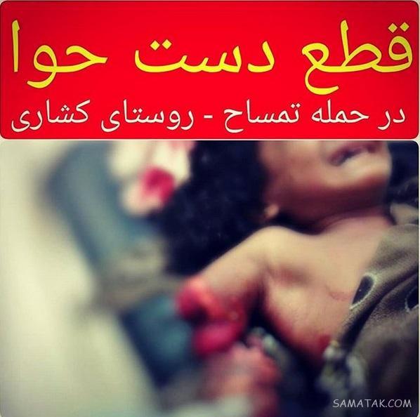 حمله تمساح به دختر بچه در سرباز (تصاویر 16+)