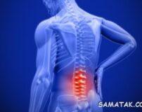 بهترین دارو برای استخوان درد | مسکن قوی برای درد استخوان