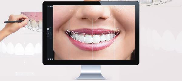 بلیچینگ دندان چقدر دوام دارد