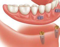 دندان مصنوعی چیست؟ انواع و نحوه مراقبت از آن